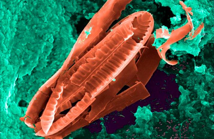 resistencias-antimicrobianas